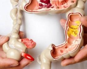 colonoscopia directorio medico de chetumal colon examen de colonoscopia