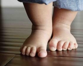 pie plano directorio medico de chetumal pie plano en niños ortopedista de niños zapatos ortopédicos ortopedista pediatra belize corozal orange walk