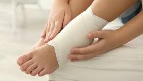 esguince de tobillo directorio medico de chetumal dolor de tobillo fractura de tobillo