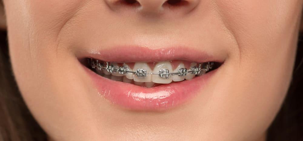 directorio medico de chetumal ortodoncia chetumal brackets protesis fijas protesis removible profilaxis rayos x extracciones bucales