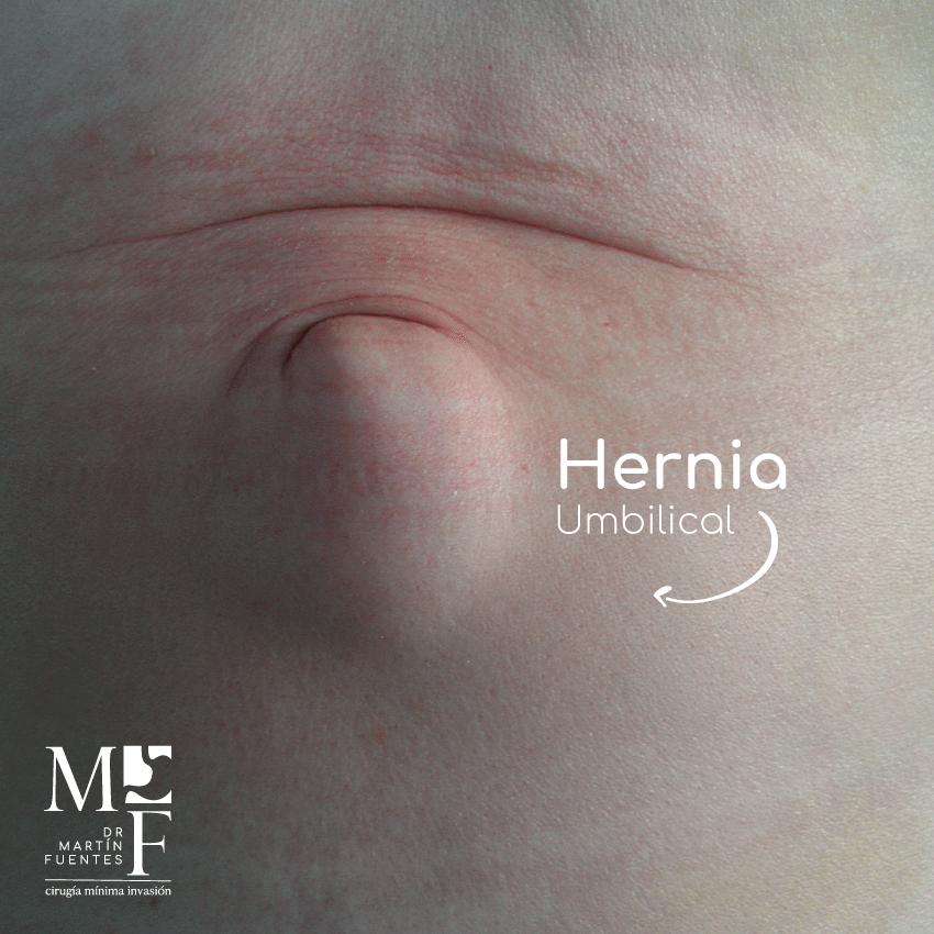 hernias umbilicales dr matin fuentes centro medico de chetumal operacion de hernias dolor de hernias directorio medico de chetumal